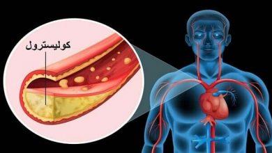 Photo of ما هي اعراض ارتفاع نسبة الكوليسترول في الدم ؟