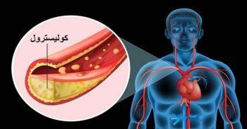 ارتفاع-كوليسترول-الدم